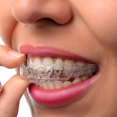 Invisible clear aligners