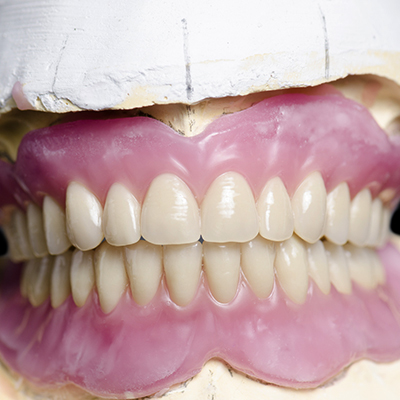 The model of the jaw with the inserted denture
