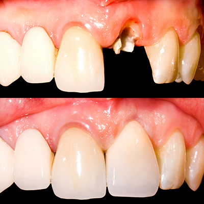 Teeth before and after insertion of the dental bridge