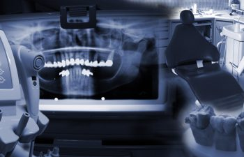 X-ray picture of teeth