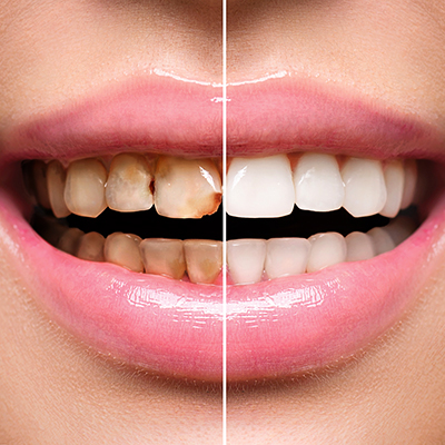 Comparison of teeth before and after surgery